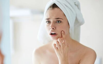 Beauty takes time: breakouts and purging